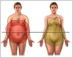 Obesidade sobrecarrega a coluna e pode causar hérnia de disco