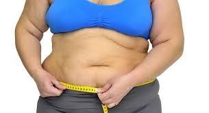 Quem se submete à cirurgia da obesidade quer ficar de bem com o espelho e a saúde