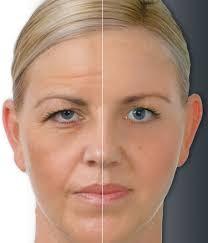 O poder do Botox®