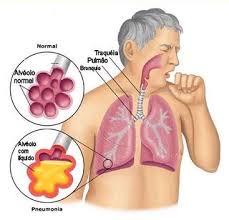 Com o inverno, cresce a preocupação com a pneumonia