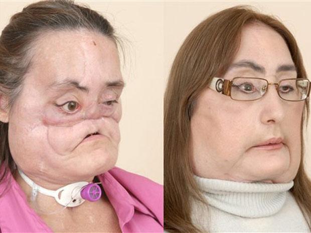 Mulher que recebeu transplante de rosto defende doação de órgãos