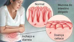 O que é a Doença Celíaca e como conviver com ela