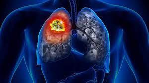 Novembro é o mês de combate ao câncer de pulmão