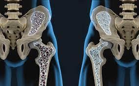 Mitos e verdades da osteoporose