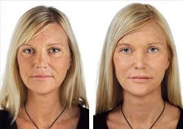 Soft lifting: tratamento que rejuvenesce a face