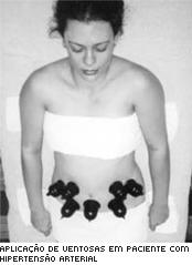 Ventosaterapia é método fácil e barato de auxiliar no tratamento dos males de saúde